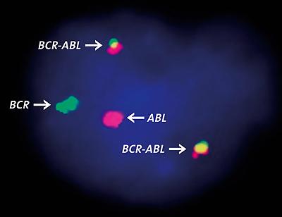 Crispr primi test in vitro nella leucemia mieloide for Bcr abl fish